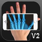 X光扫描仪 1.0.1 ios版